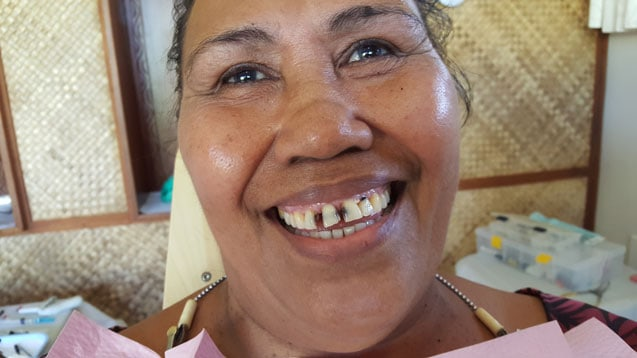 samoa dental project